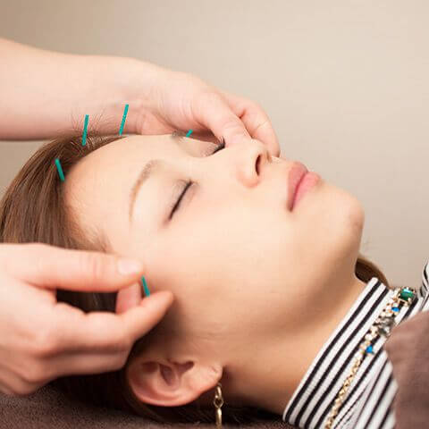 女性 顔 鍼