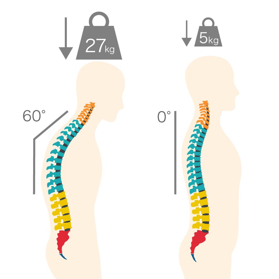 姿勢が悪いと背骨にかかる頭の重さは5倍以上