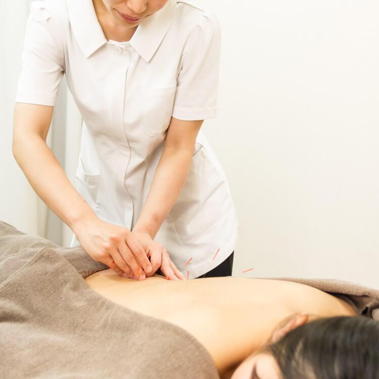 鍼の治療 女性 背中